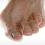 chicago-il-foot-doctor-for-hammertoe-and-claw-toe-treatment
